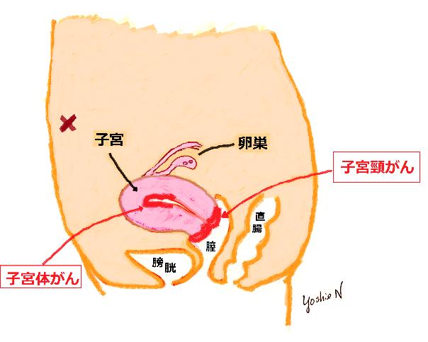 閉経 後 出血 閉経後も夜に不正出血 : yomiDr./ヨミドクター(読売新聞)